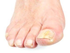 ефективний засіб від грибка на нігтях