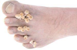 Методи лікування грибкових захворювань