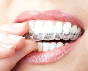 відбілювання зубів за допомогою кап