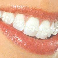 Як звикнути до зубних протезів