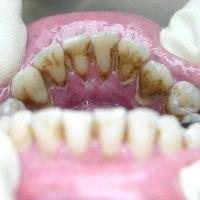 Видалення зубного каменю