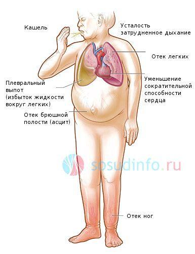 загальні симптоми серцевої недостатності