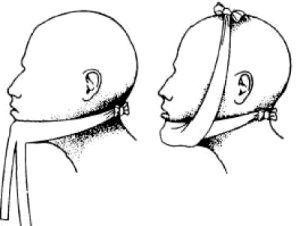Перелом нижньої щелепи