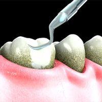 запалення ясен навколо зуба