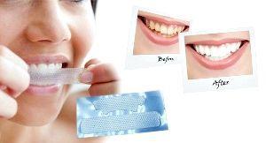 смужки для відбілювання зубів ціна