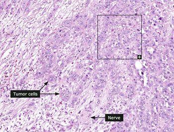 Ознаки раку