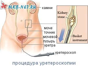 Уретероскопія процедура