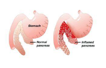 Де знаходиться підшлункова залоза? На малюнку вона виділена зеленим кольором