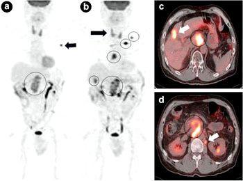 Основні захворювання підшлункової залози у людини